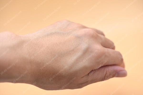 スキンコントロールローション(角質柔軟化粧水)